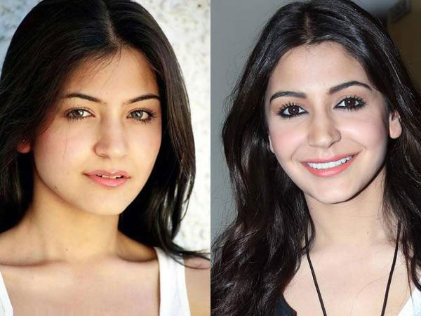 Anushka Sharma's face after surgery
