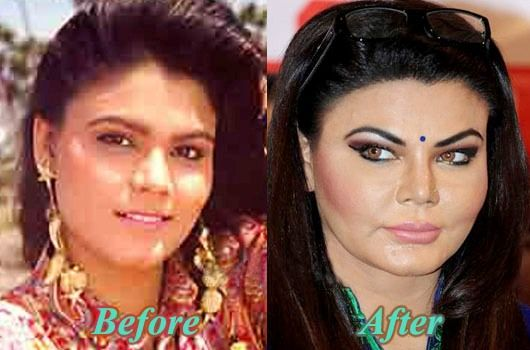Rakhi Sawant before and after Cosmetic Surgery