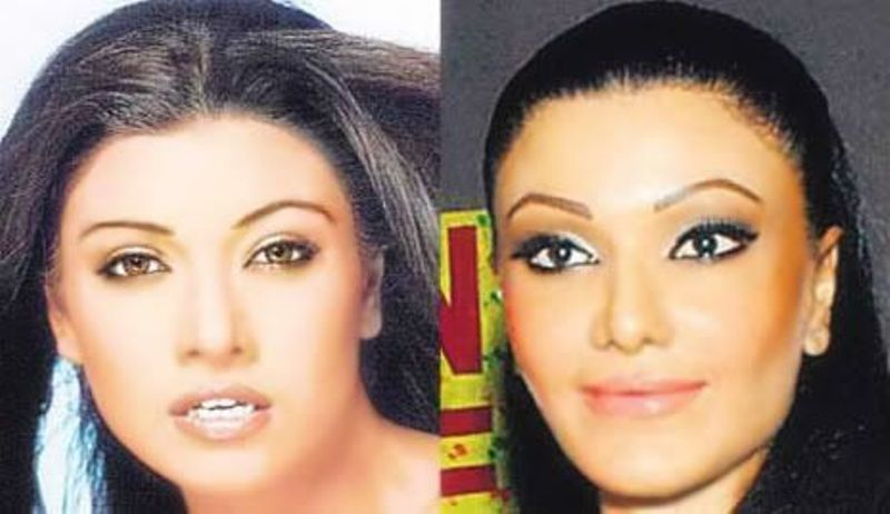 Koena Mitra before and after undergoing a nose job