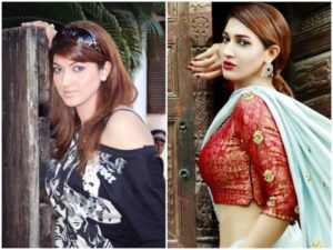 Sana Fakhar Before and After Surgery