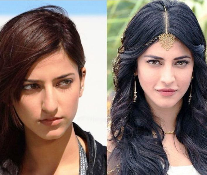 Before and After Plastic Surgery Photo of Shruti Haasan